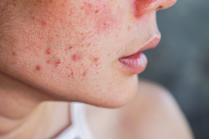 Benzoyl peroxide is effective in fighting acne causing bacteria